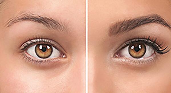 Ögonbryntransplantation